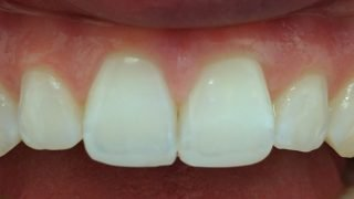 Joanna - Composite Veneers, Tooth-Coloured FIllings, Teeth Whitening after