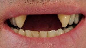 Neil - Dental Implants before