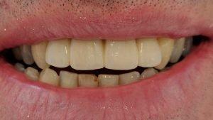 Neil - Dental Implants after
