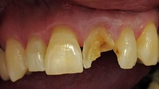 Barry - Porcelain Crowns before