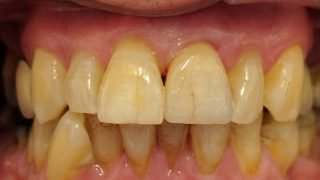 Barry - Porcelain Crowns after