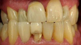 Bill - Porcelain Crowns before