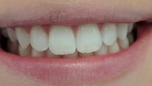Lilly - Teeth Whitening after