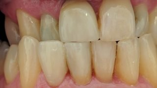 Bill - Porcelain Crowns after