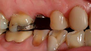 Elsie - Dental Implants, Composite Veneers before
