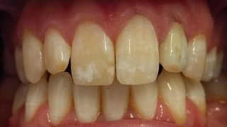 Dan - Porcelain Crowns after