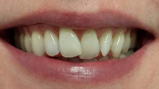 Katie - Composite Veneers, Teeth Whitening before