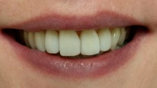 Katie - Composite Veneers, Teeth Whitening after