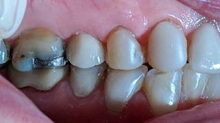 Elsie - Dental Implants, Composite Veneers after