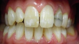 Dan - Porcelain Crowns before