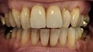 Melanie - Composite Veneers before