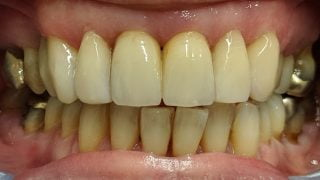 Melanie - Composite Veneers after