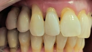 Stacey dental implants after