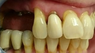 Stacey - Dental Implants, Porcelain Crowns, Teeth Whitening before