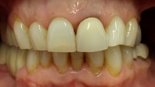 Andrea - Porcelain Crowns, Tooth-Coloured FIllings before