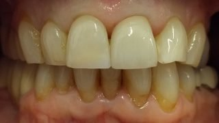 Andrea - Porcelain Crowns, Tooth-Coloured FIllings after