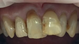 Richard - Tooth-Coloured Fillings before