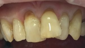 Richard - Tooth-Coloured Fillings after