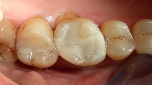 Mandy - Tooth-Coloured Fillings after