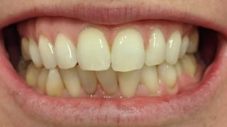 Paula - Teeth Whitening before