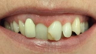 Sophie - Porcelain Crowns, Composite Veneers, Tooth-Coloured Fillings before