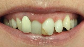 Sophie - Porcelain Crowns, Composite Veneers, Tooth-Coloured Fillings before