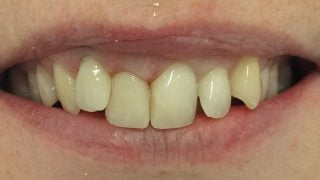 Sophie - Porcelain Crowns, Composite Veneers, Tooth-Coloured Fillings after