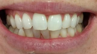 Paula - Teeth Whitening after