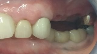 Joan - Dental Implants before