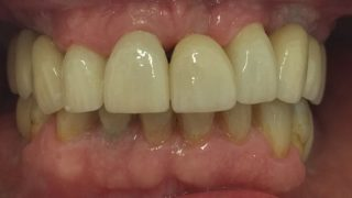 Stuart Dental implants after