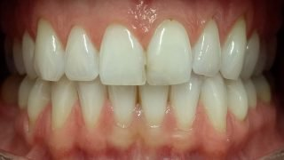 Polly - Teeth Whitening after