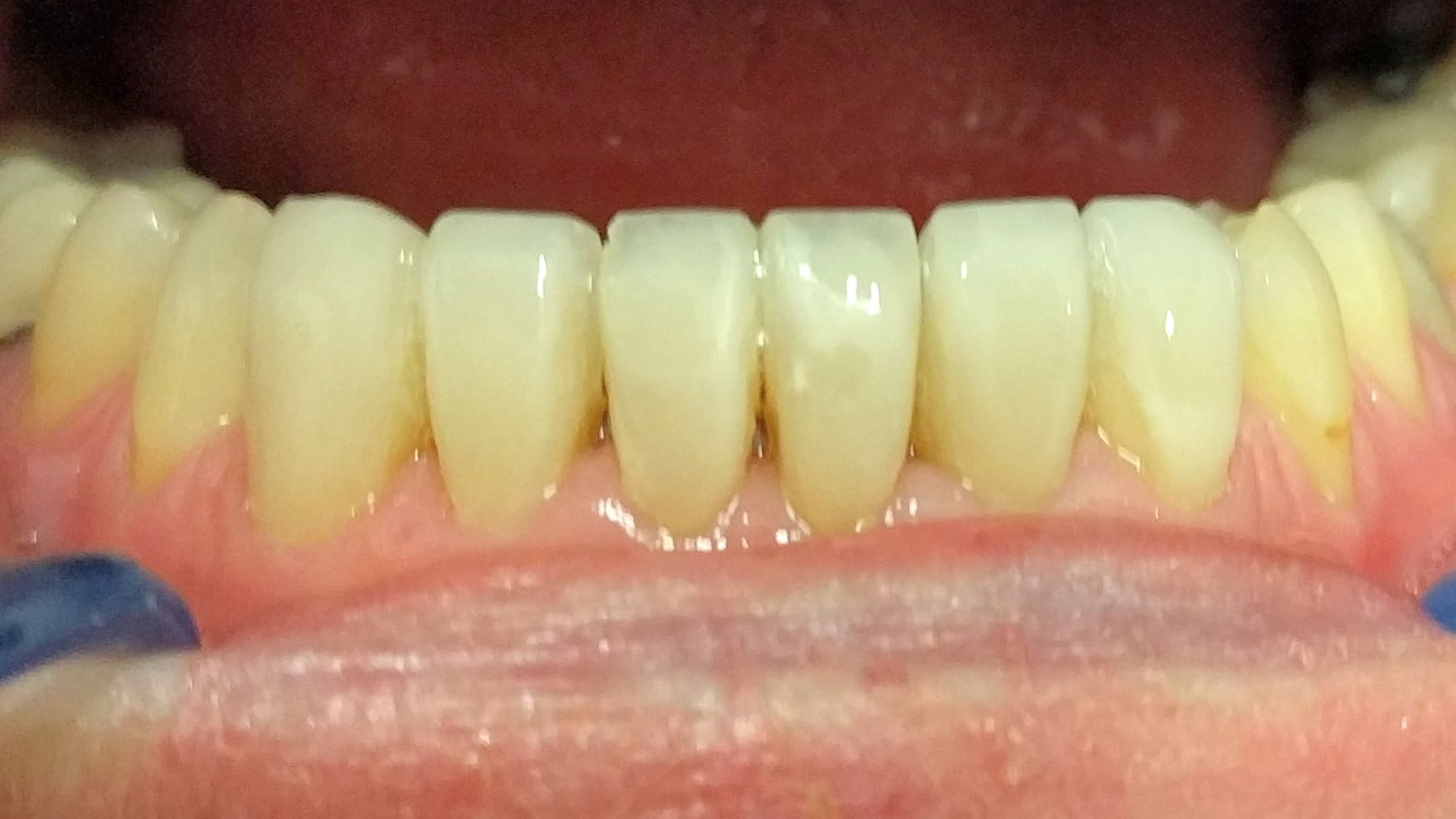 Jenny - Composite Veneers after