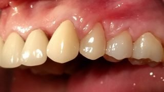 Jenny - Porcelain Crowns after