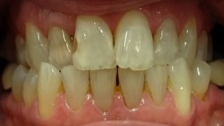 Vicky - Composite Veneers, Teeth Whitening before