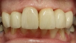 Winnie - Porcelain Crowns after