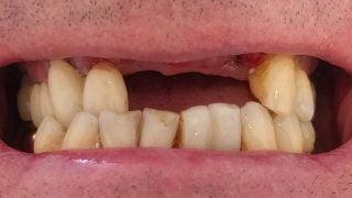Phil - Dental Implants before