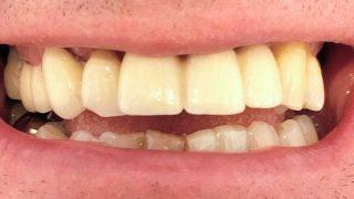 Phil - Dental Implants after