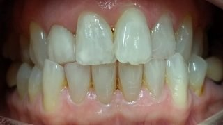 Vicky - Composite Veneers, Teeth Whitening after