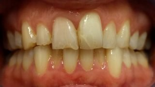Lesley - Tooth-Coloured Fillings before