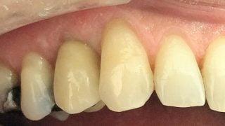Robert - Dental Implants after