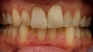 Lesley - Tooth-Coloured Fillings after