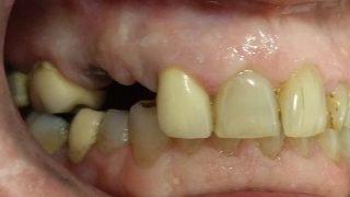 Rob - Dental Implants before