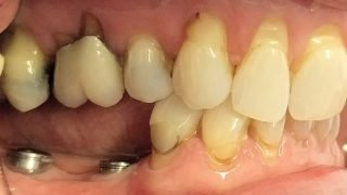 Mary - Dental Implants before