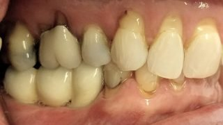 Mary - Dental Implants after