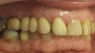Rob - Dental Implants after