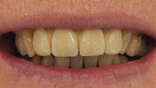 Joan - Dental Implants after