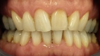 Gary whitening after
