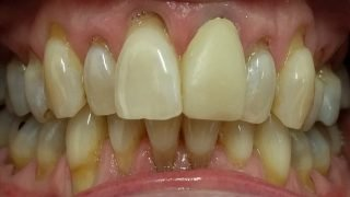 Julie - Porcelain Crowns, Teeth Whitening before