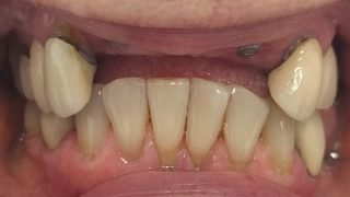 Catriona - Dental Implants, Porcelain Crowns before