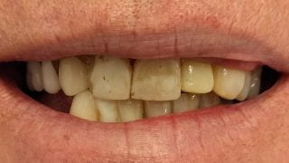 Malcolm - Porcelain Crowns, Composite Veneers before